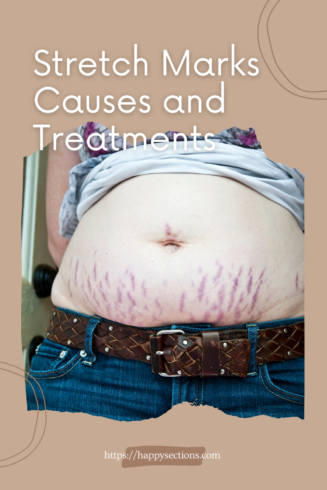 Stretch Marks Causes and Treatments